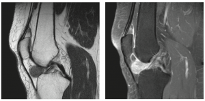 MRI of TGCT localized-type, extremity