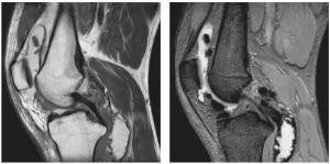 MRI of diffuse-type TGCT