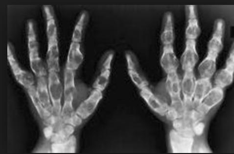 Ollier Disease