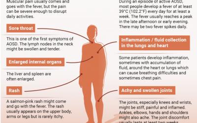 Still's Disease (Adult Onset)