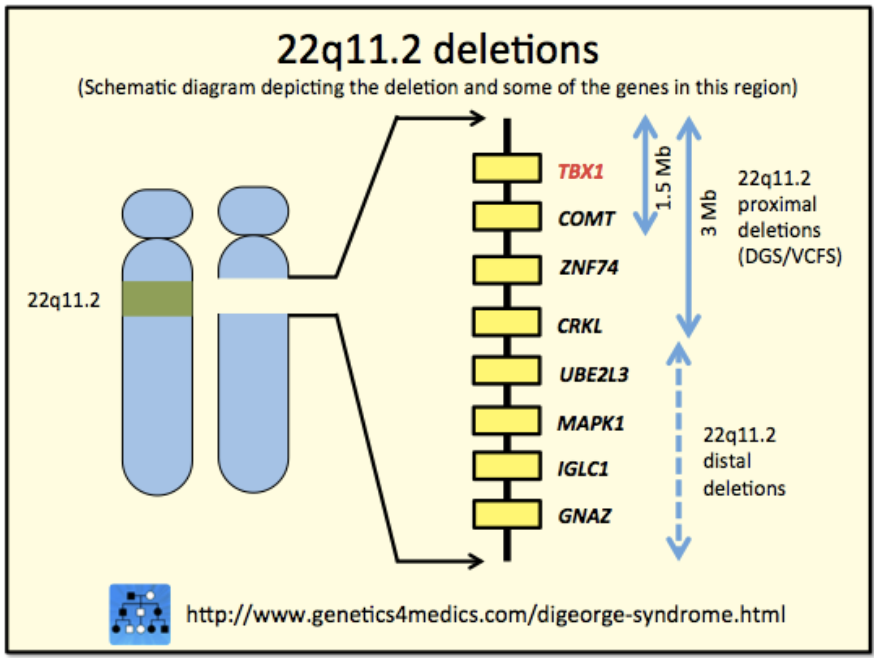 22q11.2 Deletion Syndrome