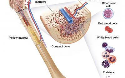 Myelodysplastic /Myeloproliferative Disease