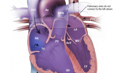 Trial Shows Adding Chemotherapy Helps Kids Live With Pulmonary Vein Stenosis