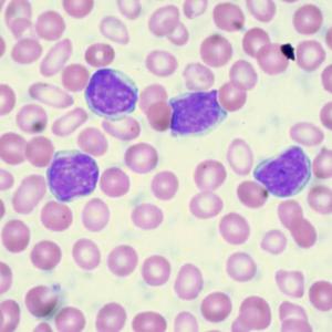 lymphocytic leukemia