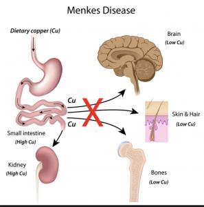 Menkes disease