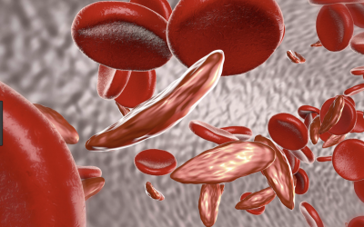 Luspatercept Successful in Late-Stage Beta Thalassemia Study