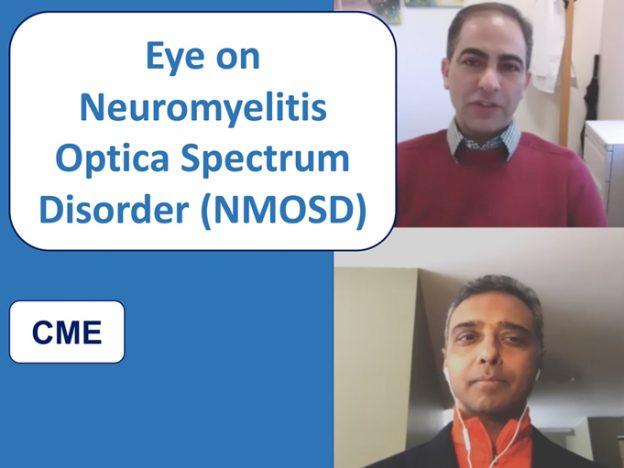 Eye on Neuromyelitis Optica Spectrum Disorder course image